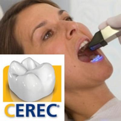ricostruzione del dente in 1 giorno
