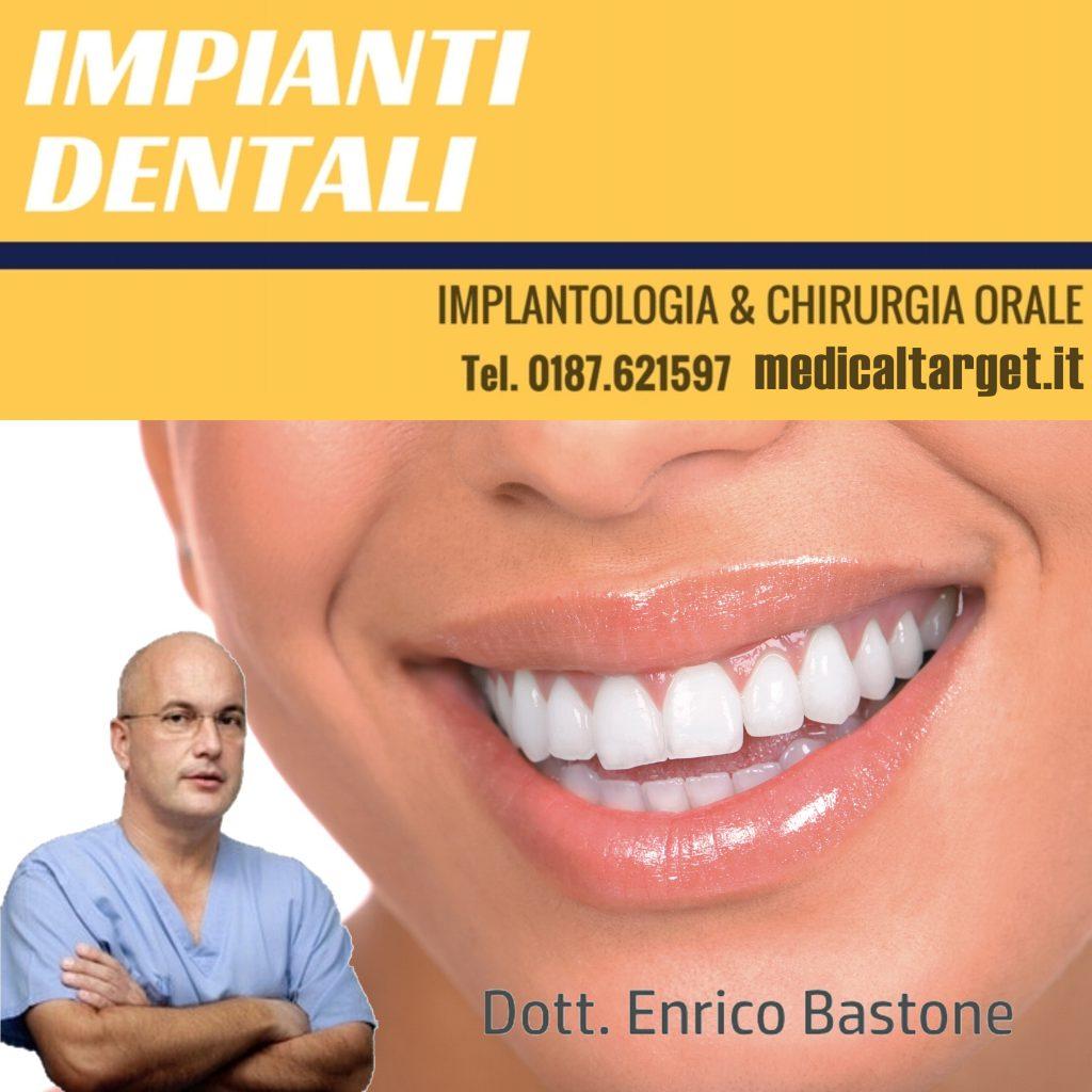 Cosa significa Implantologia Dentale