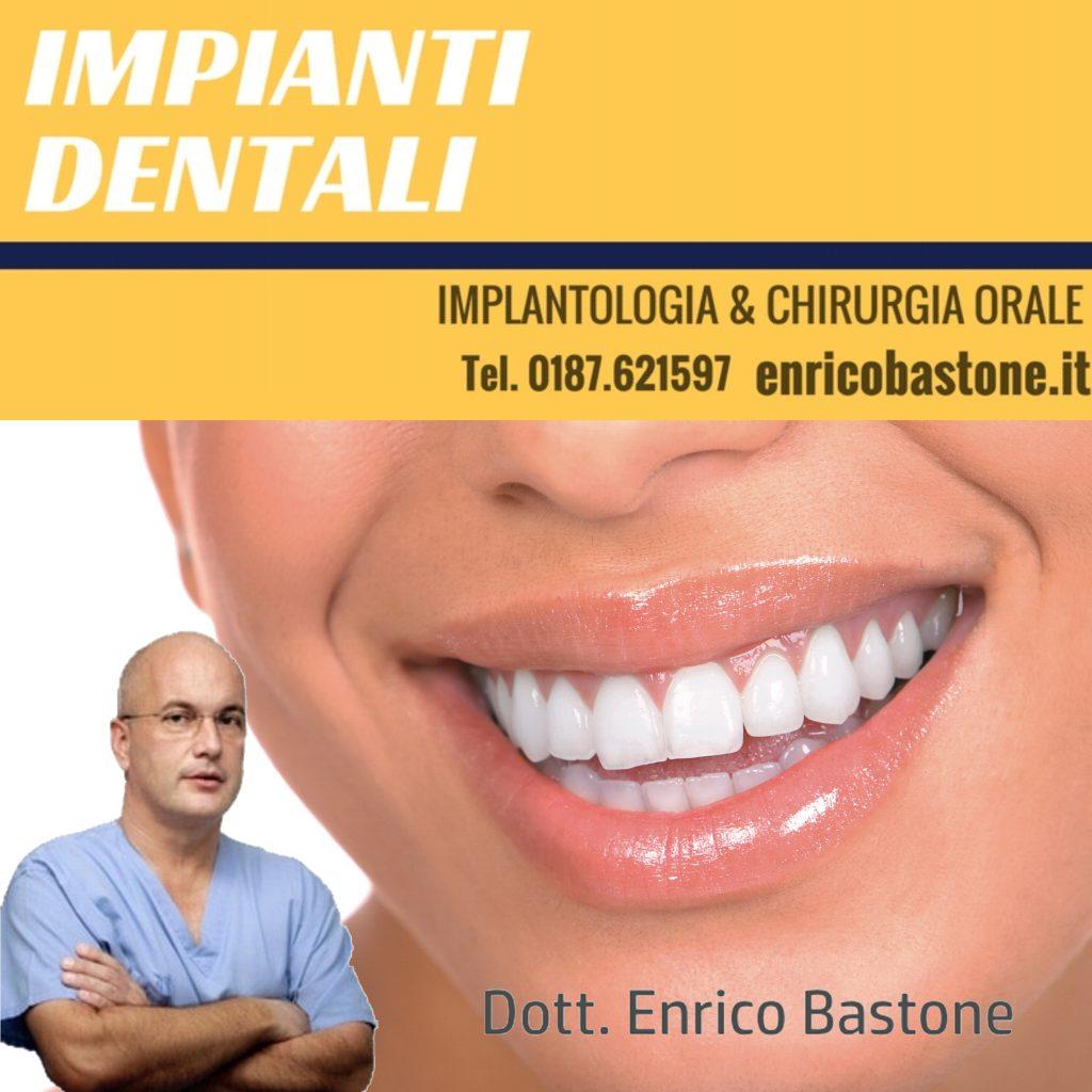 Impianti Dentali in 1 giorno