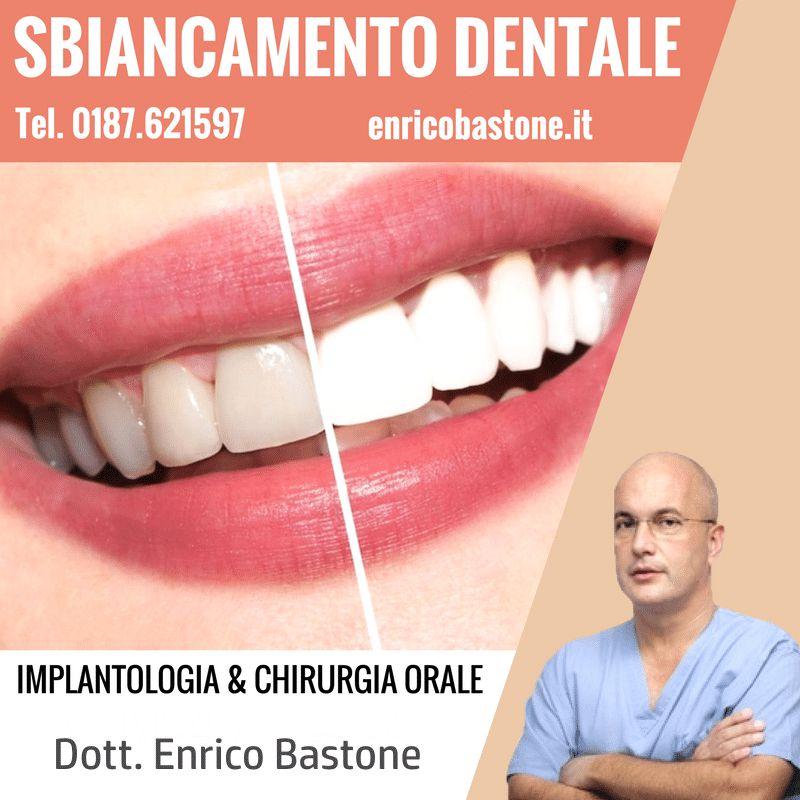 sbiancamento dentale sarzana