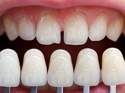 faccette dentali sarzana